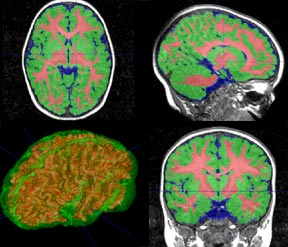 Photos of Brain Scans
